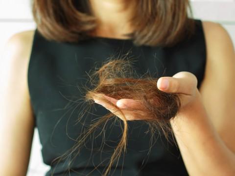 queda_de_cabelo