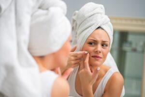 Mulher no espelho antes de tratar a acne